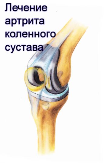 артроз коленного сустава крем